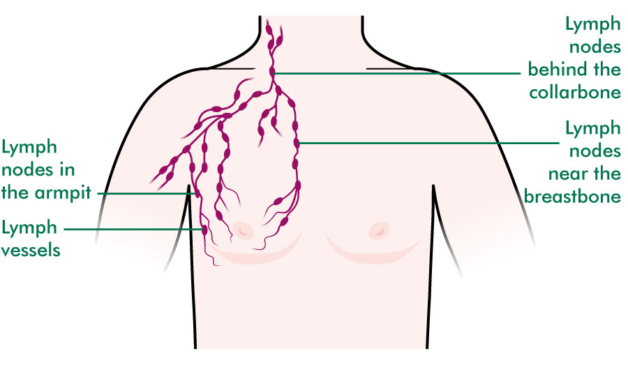 Mens breasts understanding macmillan cancer support lymph nodes near the breast ccuart Image collections