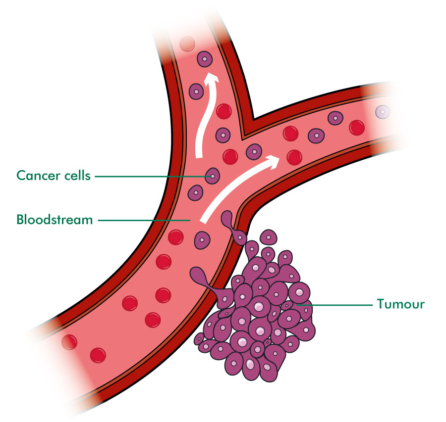 Cancer cells in bloodstream