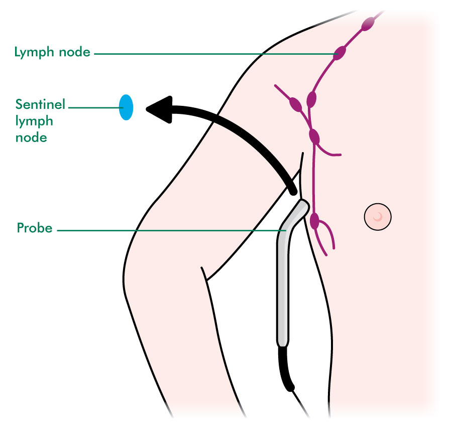 Tests to check your lymph nodes diagnosing cancer macmillan step 3 the sentinel lymph nodes are removed ccuart Gallery
