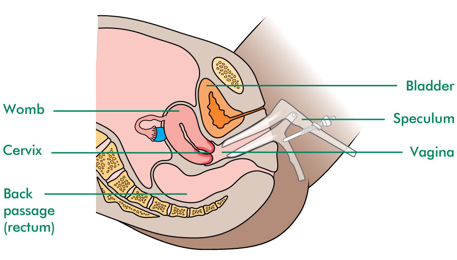 How a colposcopy is done