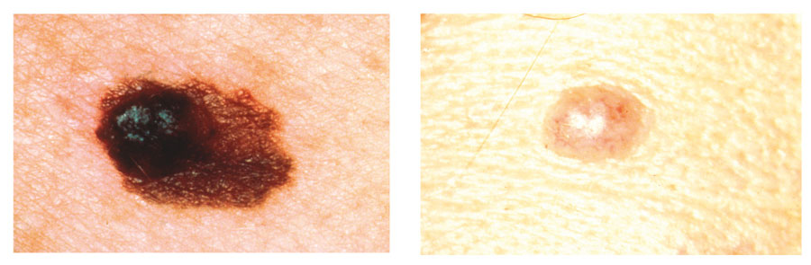 Photographs showing melanoma symptom A - asymmetry