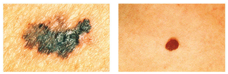 Photographs showing melanoma symptom C - colour.