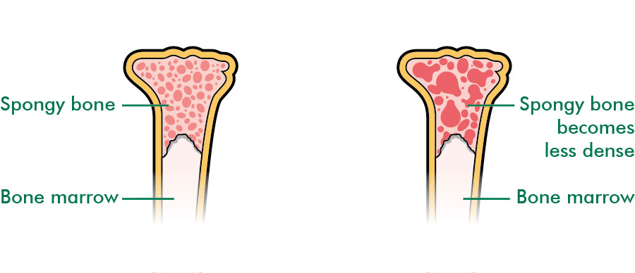 A healthy bone and a bone with osteoporosis