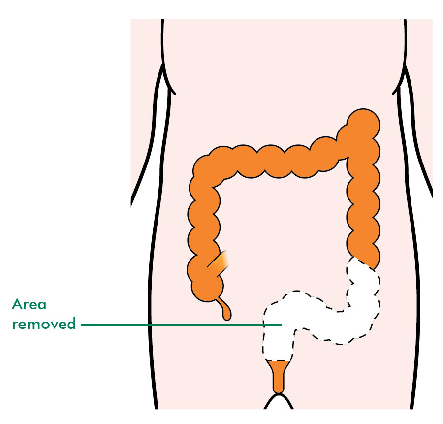 Types of surgery for rectal cancer - Information and support - Macmillan Cancer Support