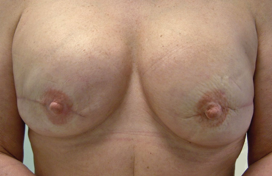 Reconstruction of both-breasts with expander implants and nipple reconstruction