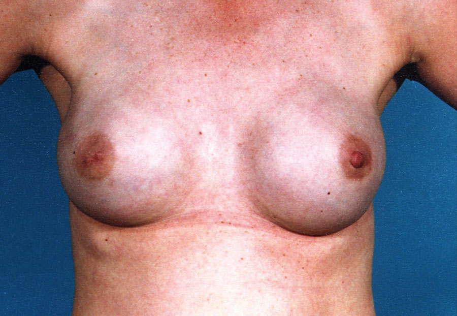 Reconstruction of both breasts with expander implants