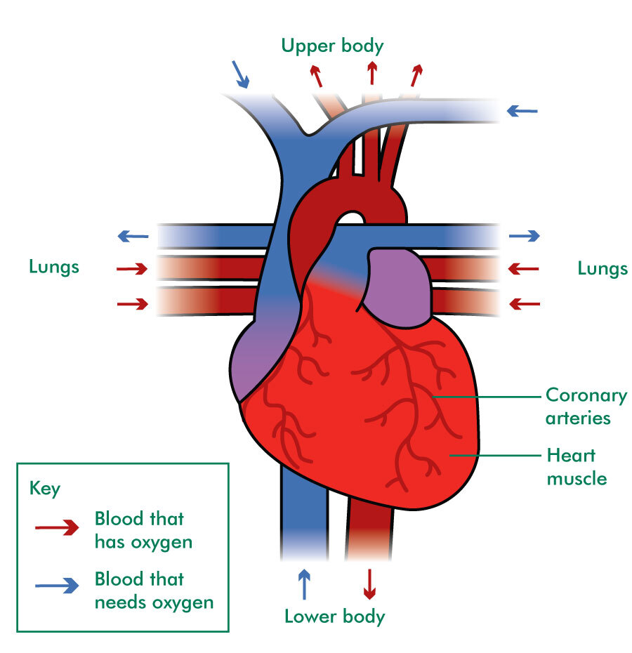 The illustration shows the front of the heart and where tubes (blood vessels) join the heart. Arrows indicate the direction blood flows through these blood vessels to enter and leave the heart. Some arrows are red to show blood that has oxygen. Some arrows are blue to show blood that needs oxygen.  Above the heart is labelled upper body. Below the heart is labelled lower body. Either side of the heart is labelled lungs.   Blue arrows (blood that needs oxygen) enter the heart through blood vessels from the upper and lower body. Red arrows (blood that has oxygen) leave the heart through different blood vessels to the upper and lower body.   Blue arrows leave the heart through blood vessels to each lung. Red arrows enter the heart through blood vessels from each lung.  The main body of the heart is labelled heart muscle. A network of thin lines is shown on the surface of the heart muscle. These are called coronary arteries.