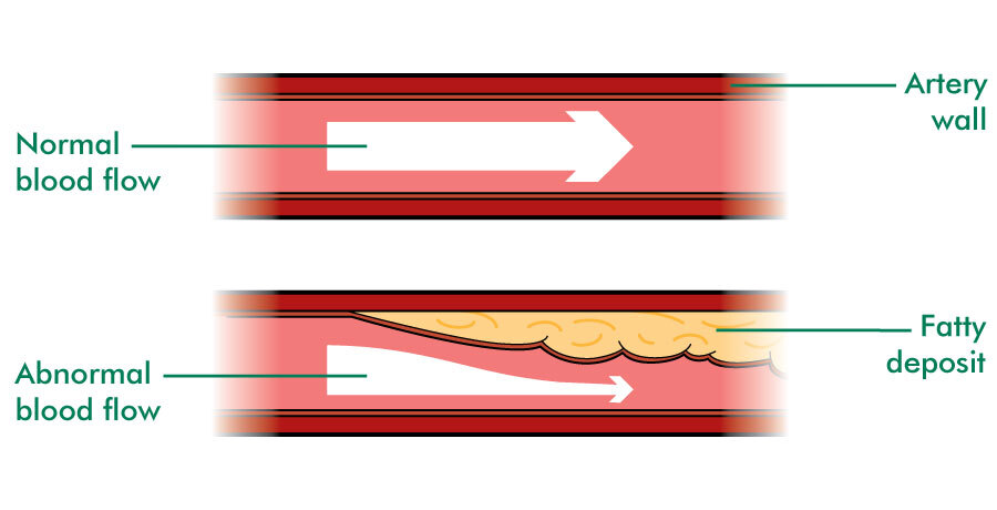 The illustration shows two tubes. These are two blood vessels or arteries. The arteries are shown in cross section. An arrow shows how blood flows through each vessel. In one artery, the arrow is large to show that the blood flows easily along the blood vessel. This is labelled normal blood flow. In the other artery, there is an area of fatty tissue attached to the inside of the artery wall. This makes the inside of the artery much narrower. The arrow becomes small and thin to fit past the fatty tissue. It is labelled abnormal blood flow.