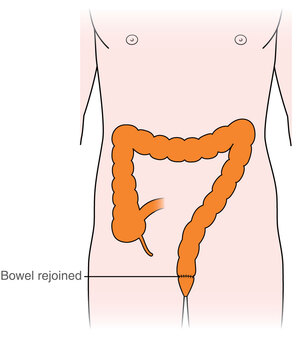 Types Of Surgery For Rectal Cancer Macmillan Cancer Support