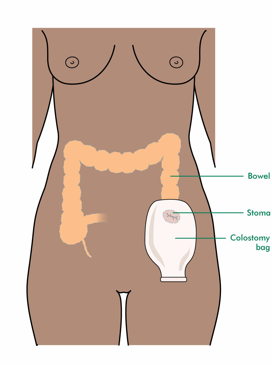 A stoma and colostomy bag