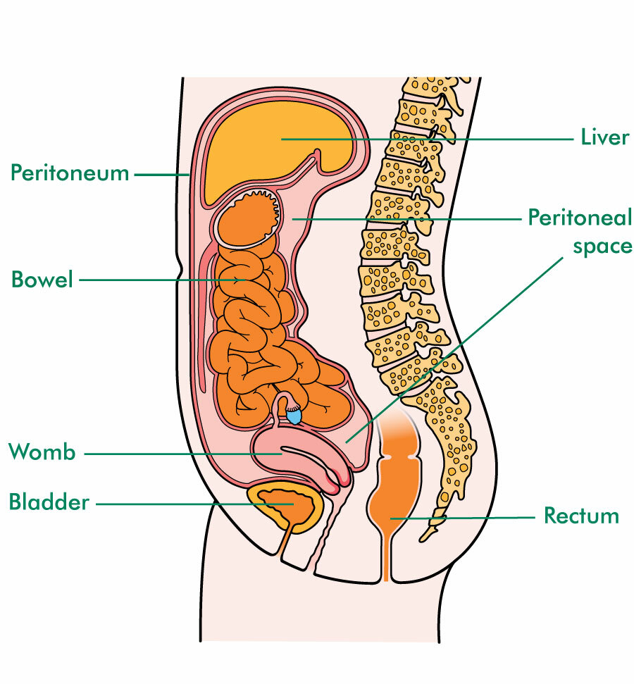 Illustration of side view of the female tummy (abdomen) showing the peritoneum