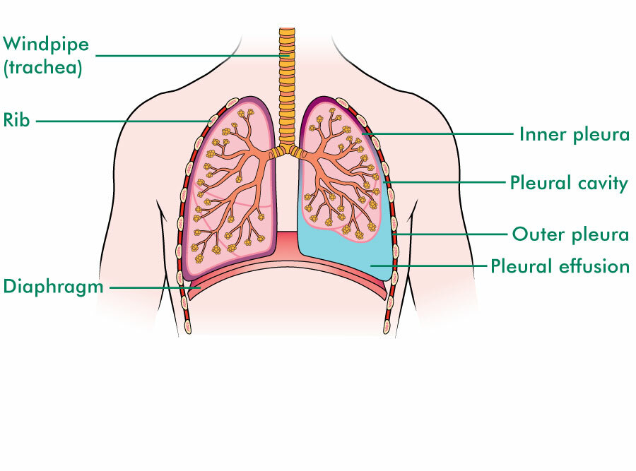 Illustration shows the lungs in the chest