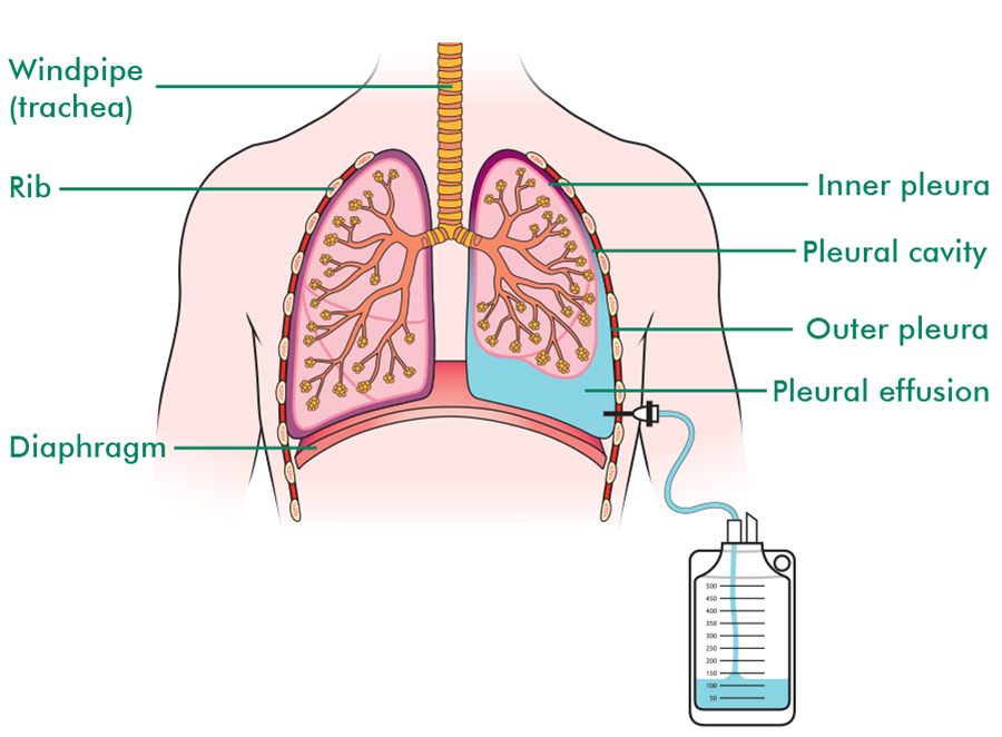 Illustration shows the lungs in the chest with pleural effusion drainage