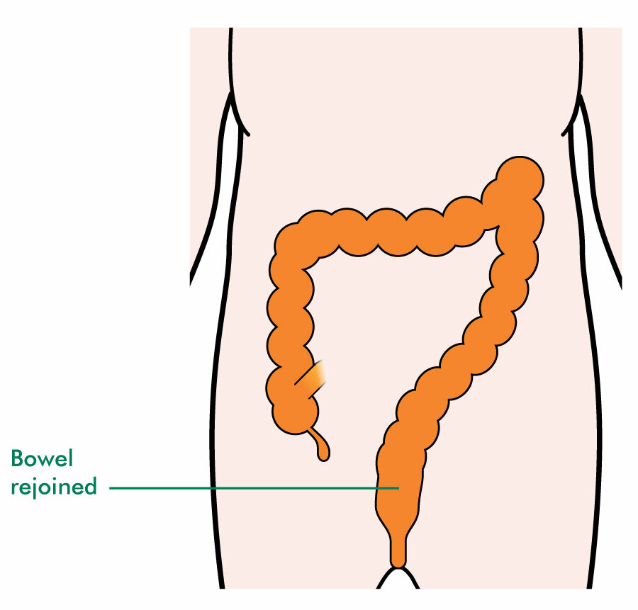 Anterior resection – bowel has been rejoined