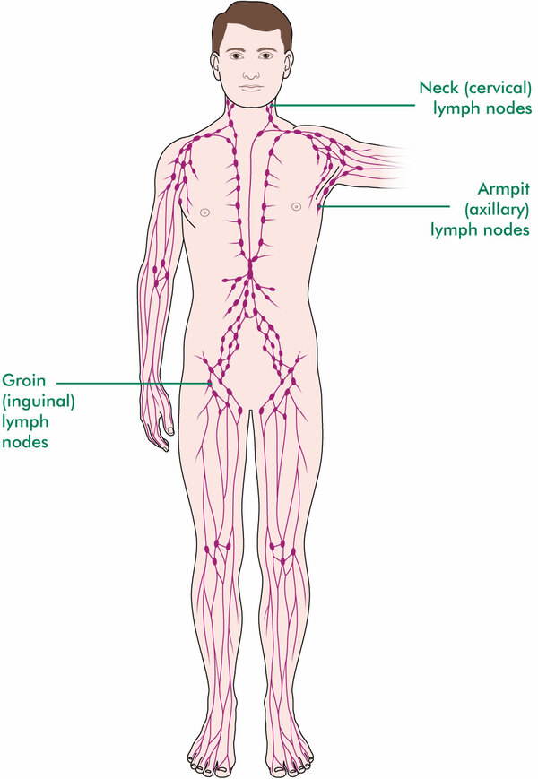 The diagram shows the network of lymph nodes throughout the body
