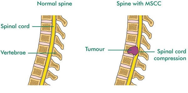 Illustration of malignant spinal cord compression