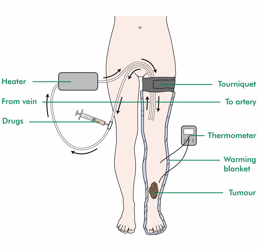 Isolated limb infusion