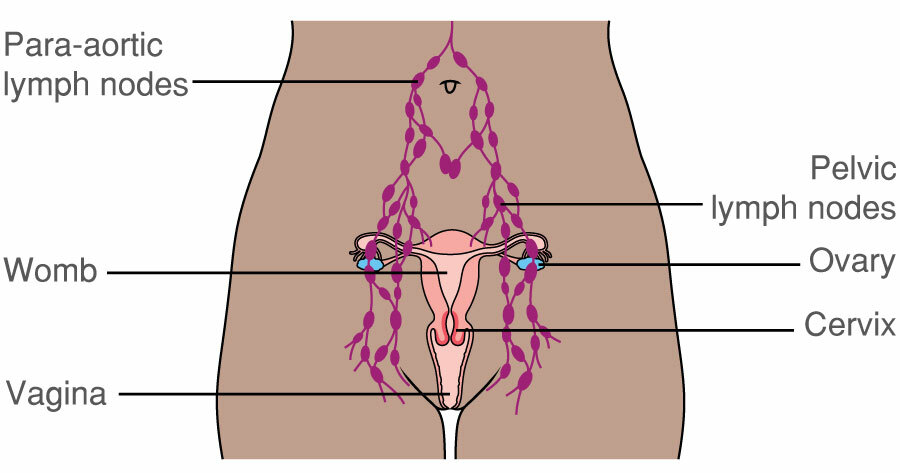 Lymph Nodes In The Femae Lower Abdomen And Pelvis Macmillan Cancer Support