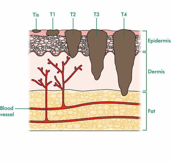 This diagram shows the five 5 stages of melanoma within a cross-section of the skin. It also shows the different layers of the skin. The top layer is the epidermis. Beneath this is the dermis, which sits on top of a layer of fat. Blood vessels within the dermis and fat layers are also shown. The five tumours in the diagram increase in size from left to right. The smallest tumour (Tis) sits on the top layer of the skin. The next tumour (T1) extends a little further into the epidermis. The next tumour (T2) extends to the bottom of the epidermis. The fourth tumour (T3) extends further into the dermis. The largest of the five 5 tumours (T4) on the right side of the diagram, extends down from the top of the skin, through the epidermis and dermis and into the fat layer of the skin.