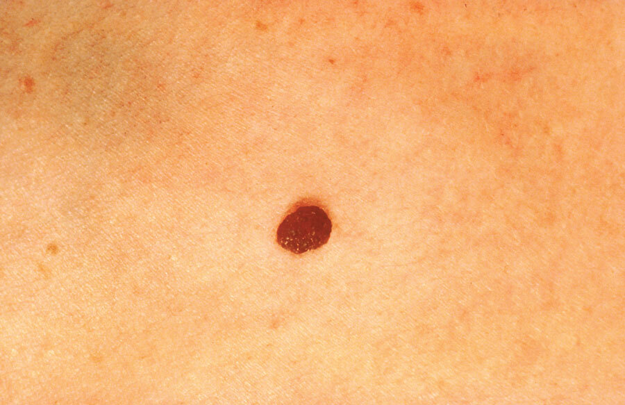 Normal mole with no colour difference