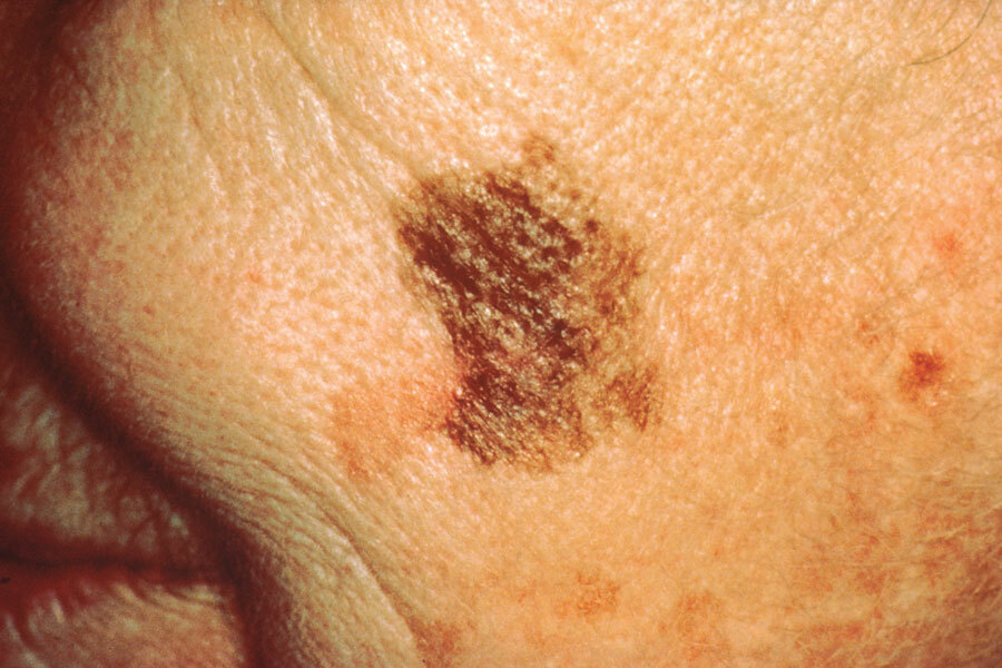 Melanoma with a diameter change