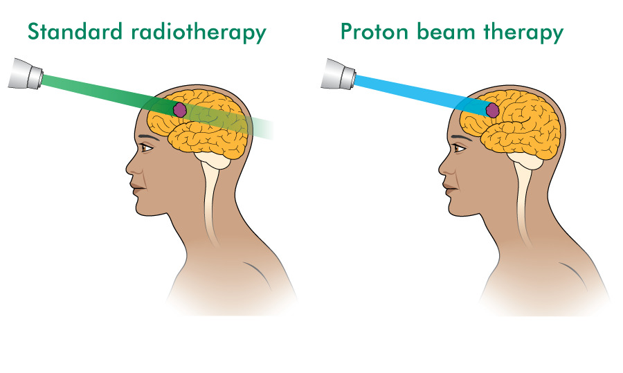 Proton beam therapy and standard radiotherapy