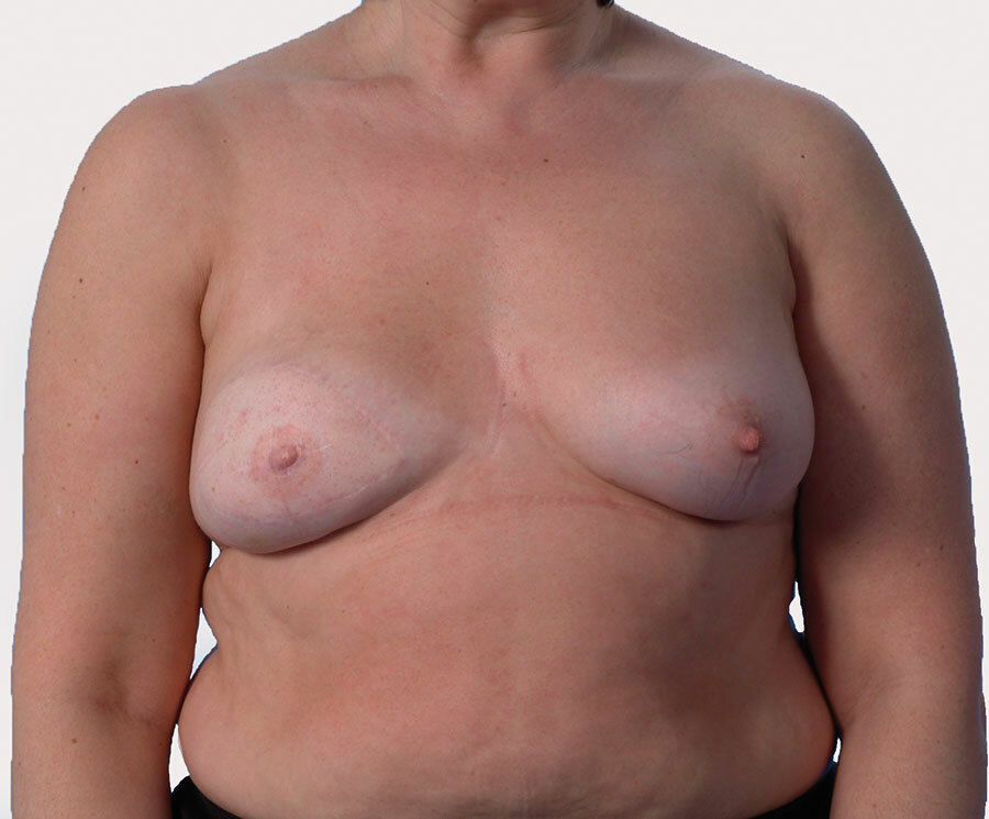 A woman with a nipple prosthesis