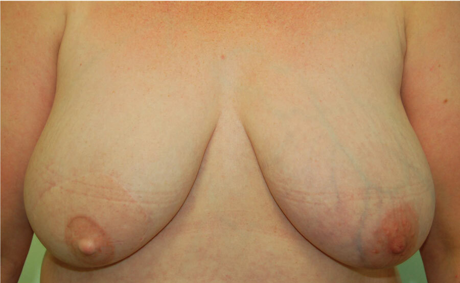 LD flap with implant and nipple reconstruction