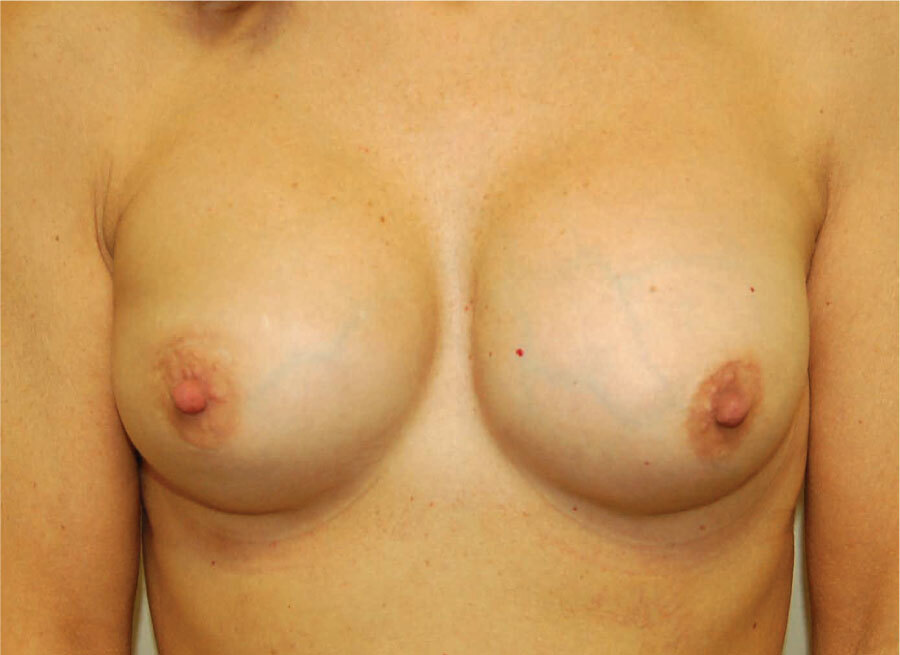 Bilateral nipple sparing mastectomies with implants