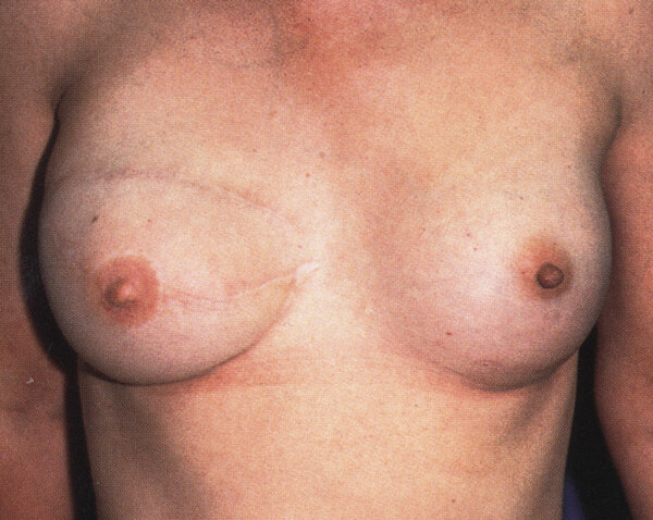 The photograph shows a woman who has had an SGAP flap to her right breast.