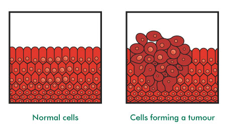 Normal cells and cells forming a tumour