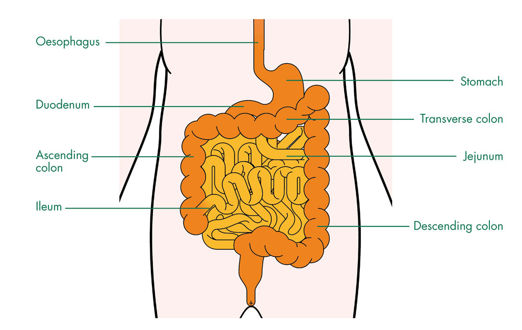 Small Bowel Cancer - Cancer Information
